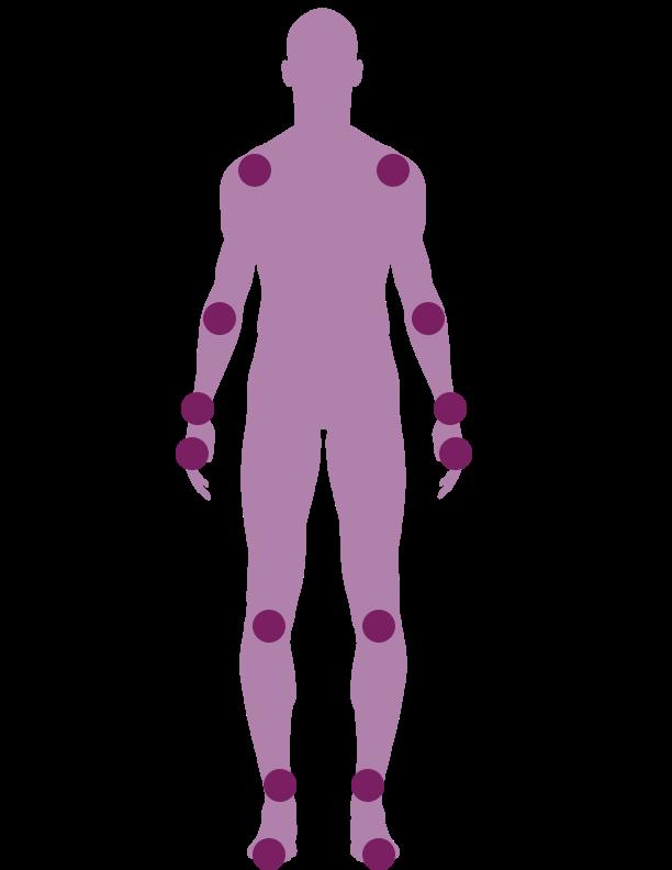 Rheumatoid Arthritis Novocur