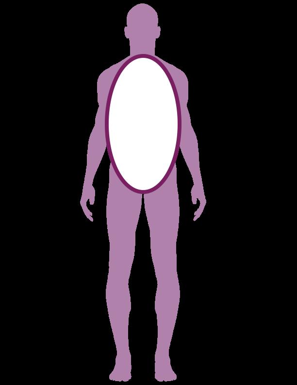Scoliosis Novocur