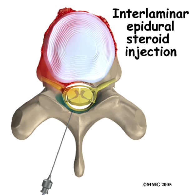 steroid injection into shoulder joint