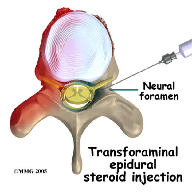 steroid injection pain